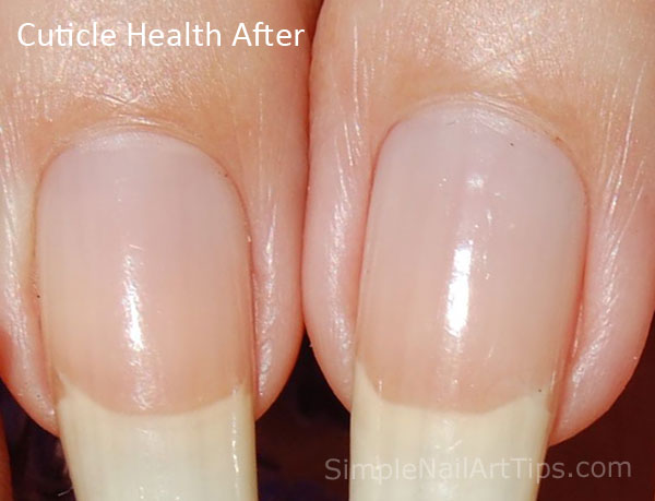 Pure™ Cuticle and Nail Oil results showing cuticle health