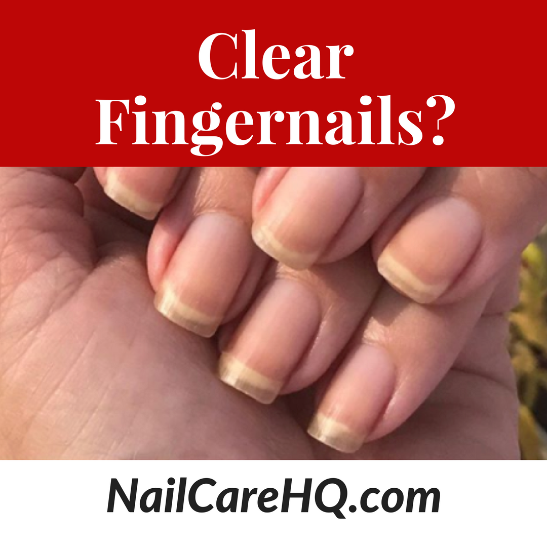 Clear Fingernails