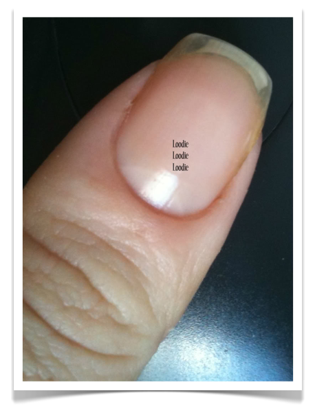 Biggest Cause Of Clear Fingernails