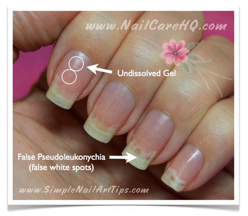 Remove-Gel-Nails-White-Spots-in-Nails
