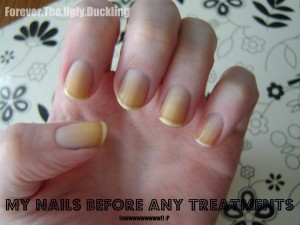 how to clean yellow nicotine stained fingers