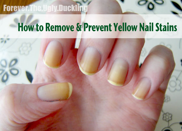 Nailcarehq Yellow Nails How To Remove And Prevent Staining