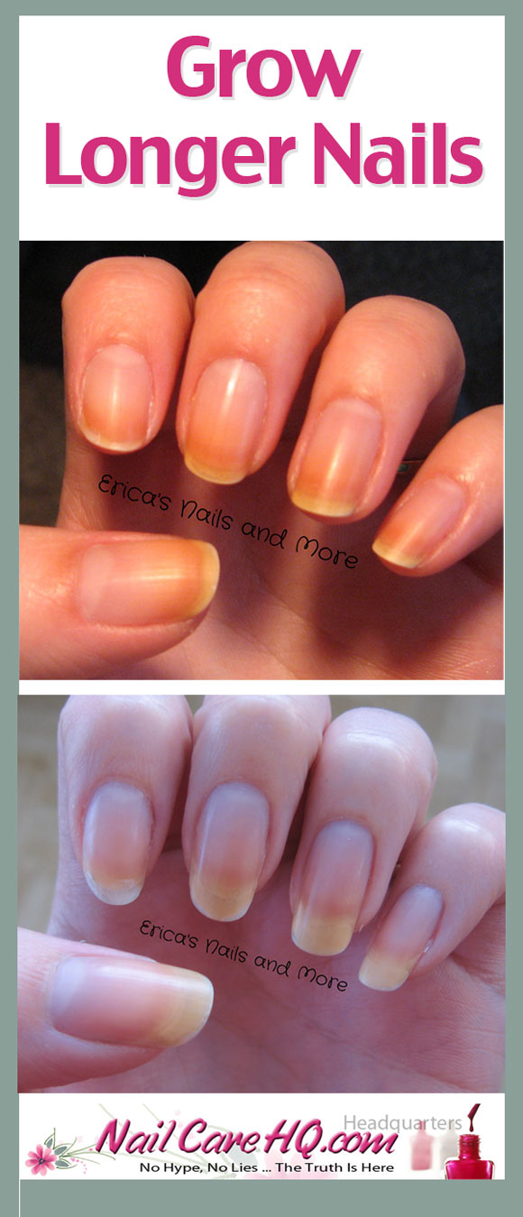 Yellow Nails & Nail Oil - Pure Nail Oil™ Challenger Erica ...