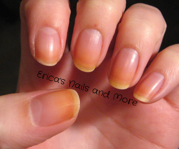 Yellowing Of The Fingernails 23