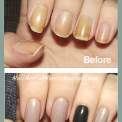 Stronger-Nails-Kellis-Results