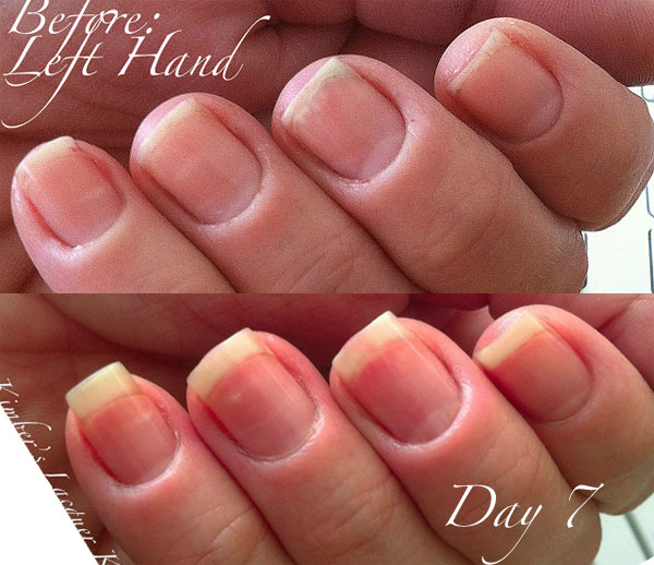 CUTICLE HEALTH - Pure Nail Oil™ Challenger Kimber\'s Results