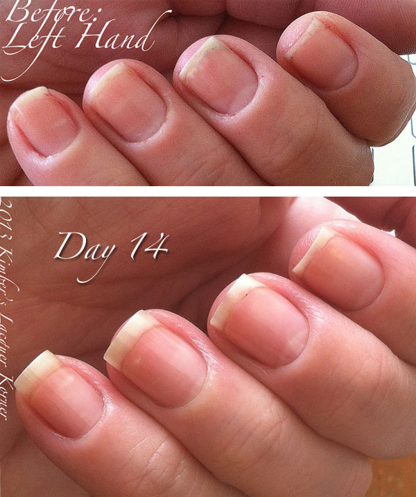 Cuticle Left Hand day 14 What Pure™ Can Do For You