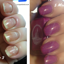 www.NailCareHQ.com White-spots-on-nails-5 month update