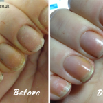 www.NailCareHQ.com White-spots-on-nails