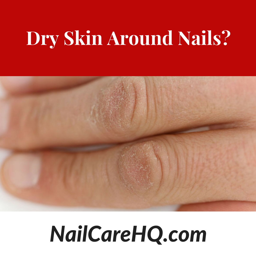 How Do I Prevent Hard Dry Skin Around My Nails