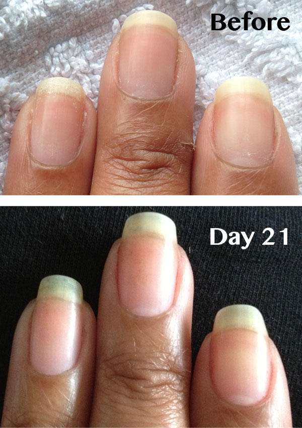 Ling Nails Www Nailcarehq Becky S Before And After