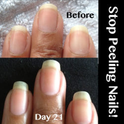 Peeling-nails-Becky-Before-Closeup www.NailCareHQ.com