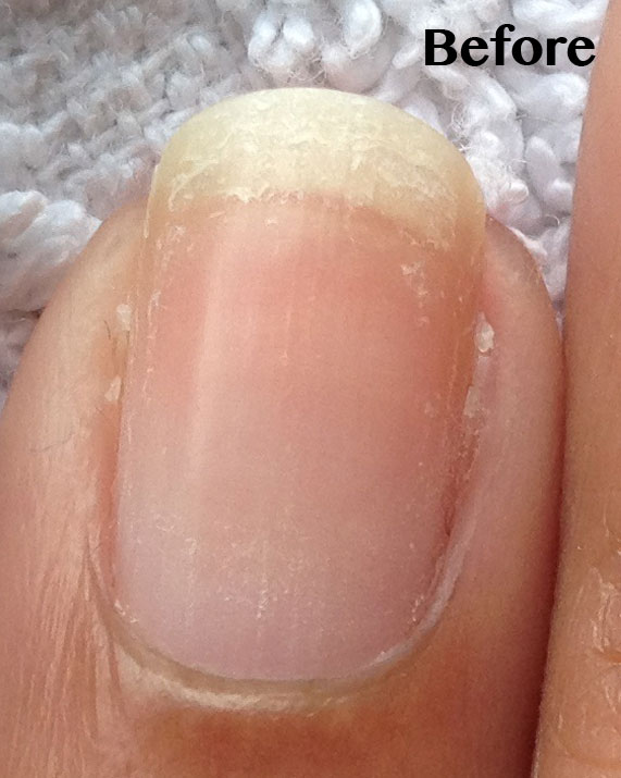 PEELING NAILS - Pure Nail Oil and Cuticle Oil Challenger Becky\'s Results