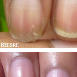 www.NailCareHQ.com Peeling nails - Marie Claire's Pure Nail Oil Challenge Results