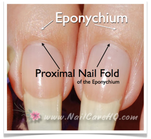 Cuticle - Proximal Fold of the Eponychium