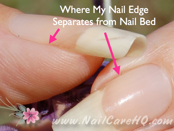 Then The Edge Of My Nail Is Exposed Image Hangnail Removal Tool Nippers Www Nailcarehq