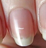 white-spots-on-nails-1-nailcarehq