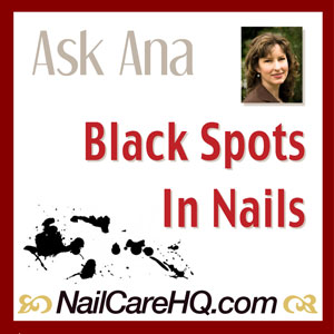 black-spots-in-nails-nailcarehq-300