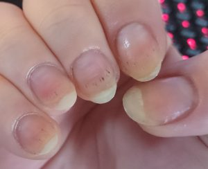 black spots in nails nailcarehq