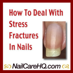 stress-fractures_nailcarehq_300