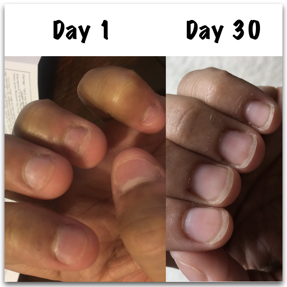 How To Stop Biting Nails Angela S Results Infinity Nails