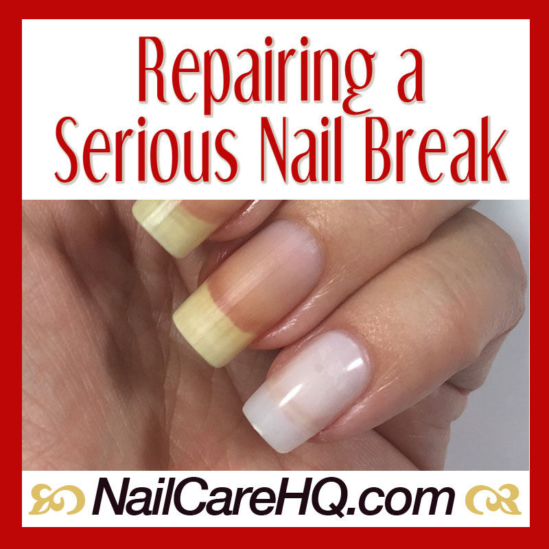 Broken Nail Repair - What To Do When It\'s Bad - Nail Care HQ