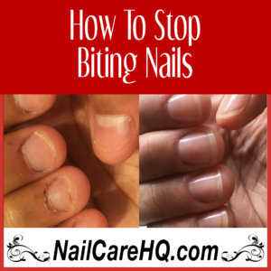 how to stop biting nails Angela's results