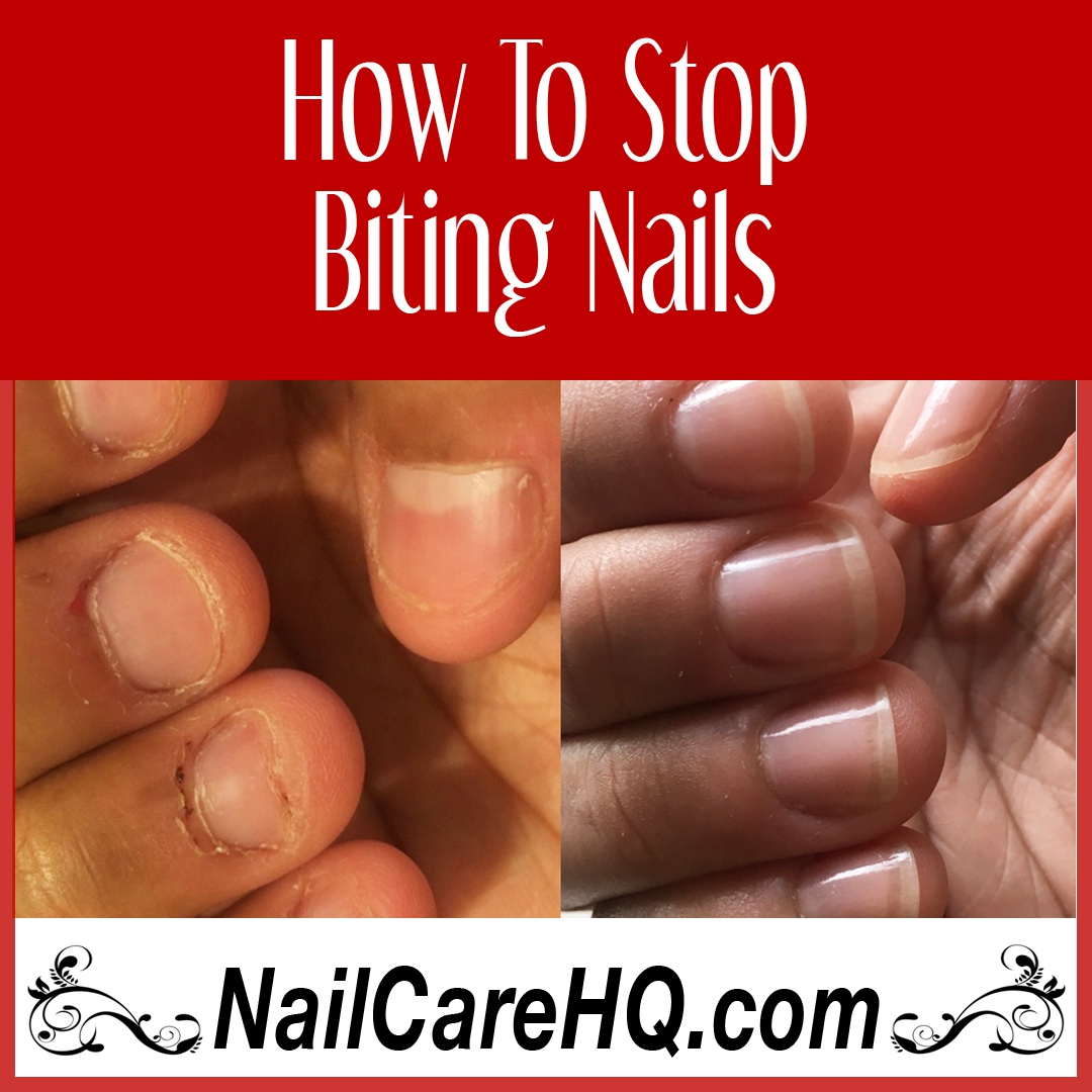 How To Stop Biting Nails - Angela\'s Results - Nail Care HQ