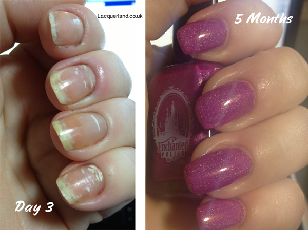 WHITE SPOTS IN NAILS – Sue\'s Pure Nail Oil™ Challenge   Nail Care HQ