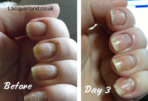 5315d72a7c06 WHITE SPOTS IN NAILS – Sue s Pure Nail Oil™ Challenge