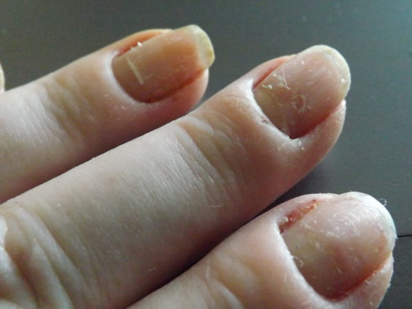 WHITE SPOTS IN NAILS – Sue's Pure Nail Oil™ Challenge | Nail Care HQ