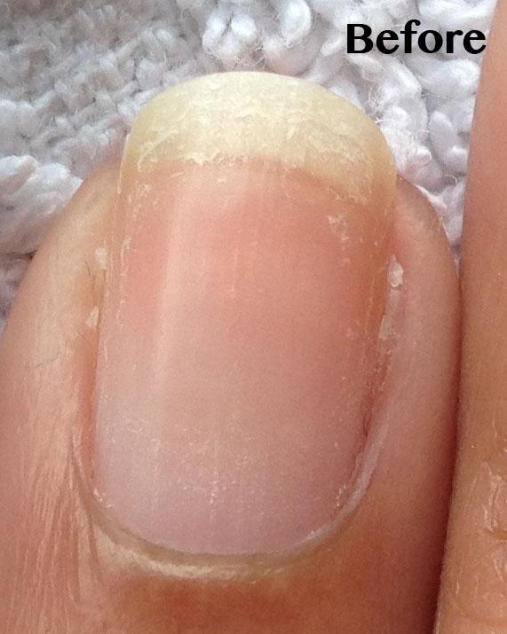PEELING NAILS – Becky\'s Pure Nail Oil™ Results   Nail Care HQ