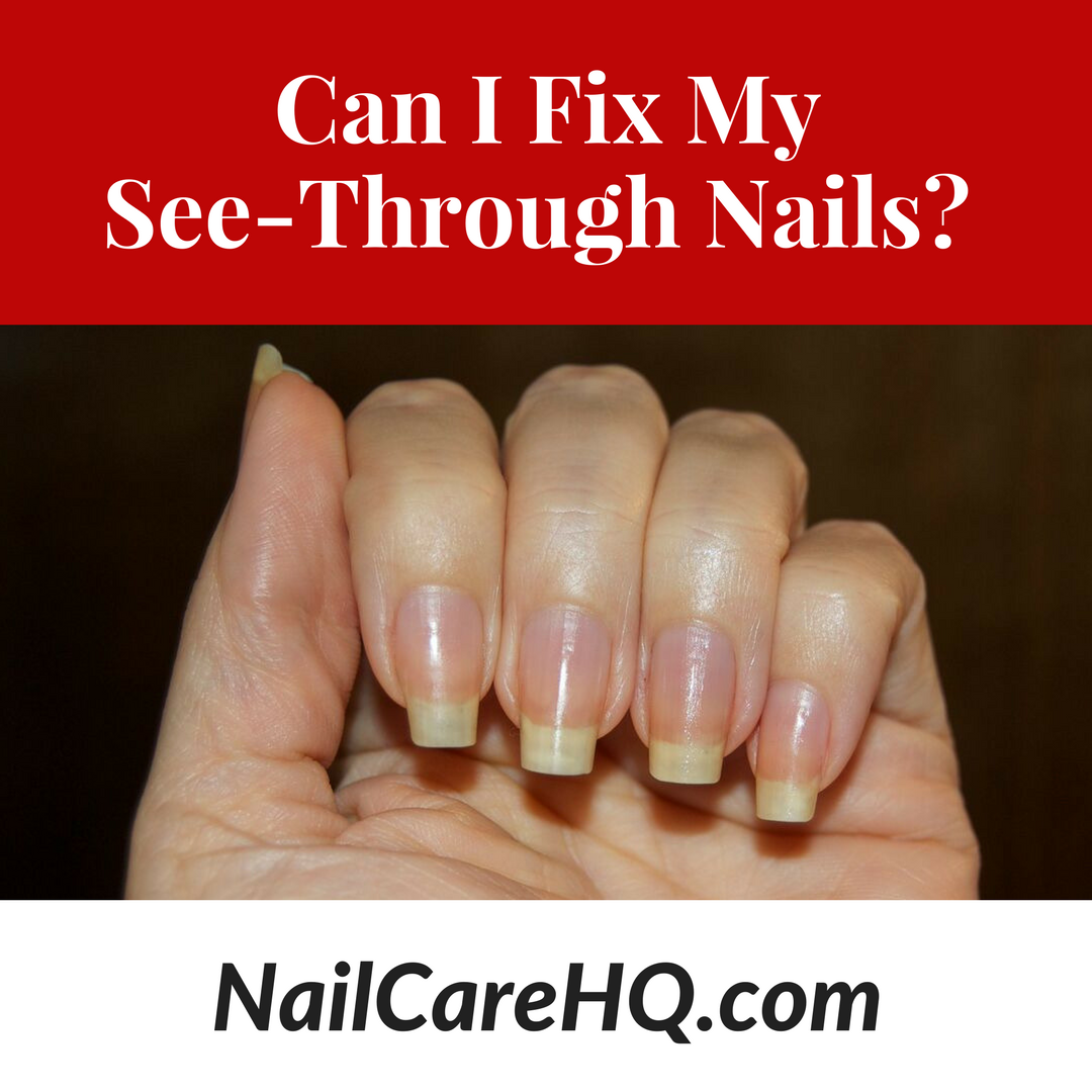 See Through Nails Can I Fix It Nail Care Hq