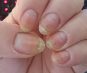 ASK ANA: Black Spots In Nails | Nail Care HQ