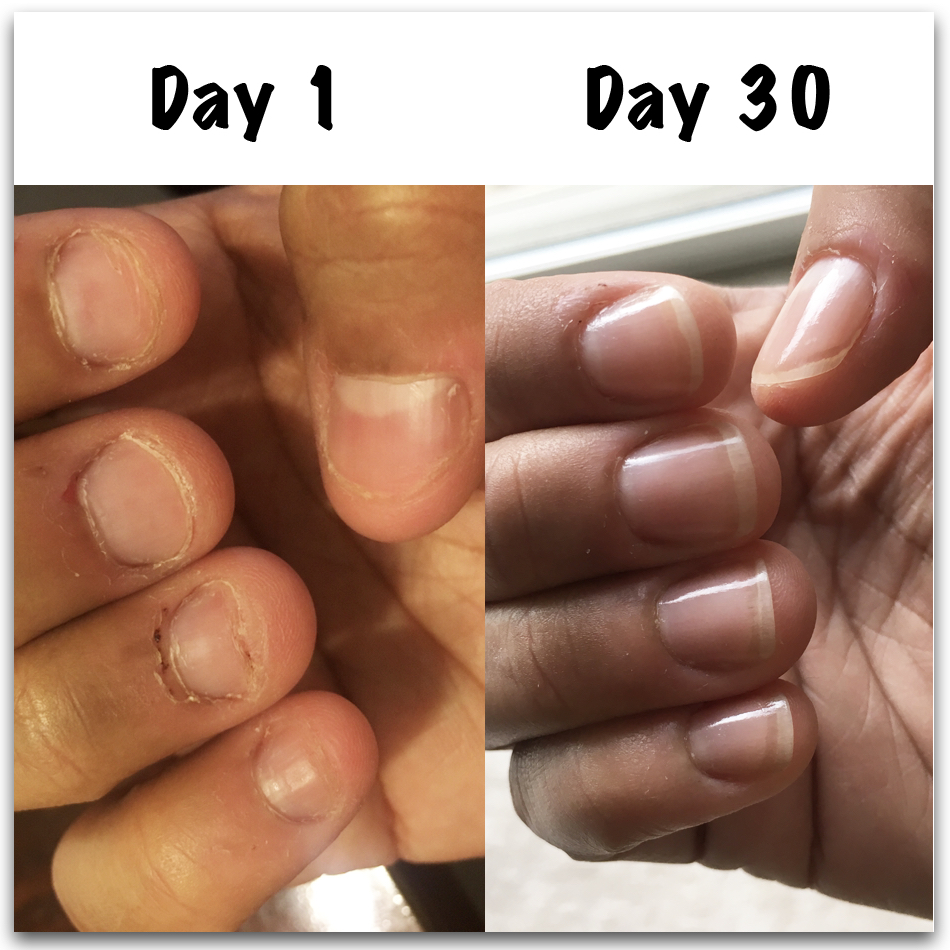 How To Stop Biting Nails Angela S Results Nail Care Hq
